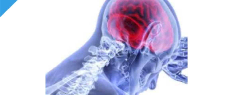 Dolore Nociplastico – Revisione della letteratura e delle buone pratiche cliniche