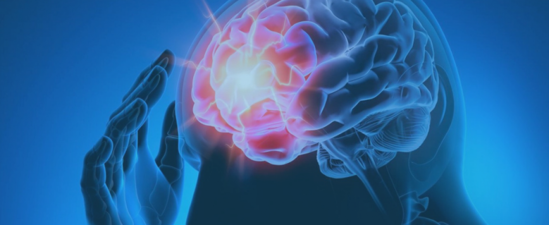 La gestione fisioterapica delle cefalee: dalla terapia manuale alla pain education, un approccio EBM